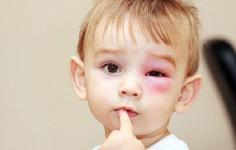 Mẹo chưa ong đốt gây đau nhức rất nhạy